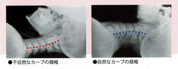 スマホ首 不自然なカーブの頚椎