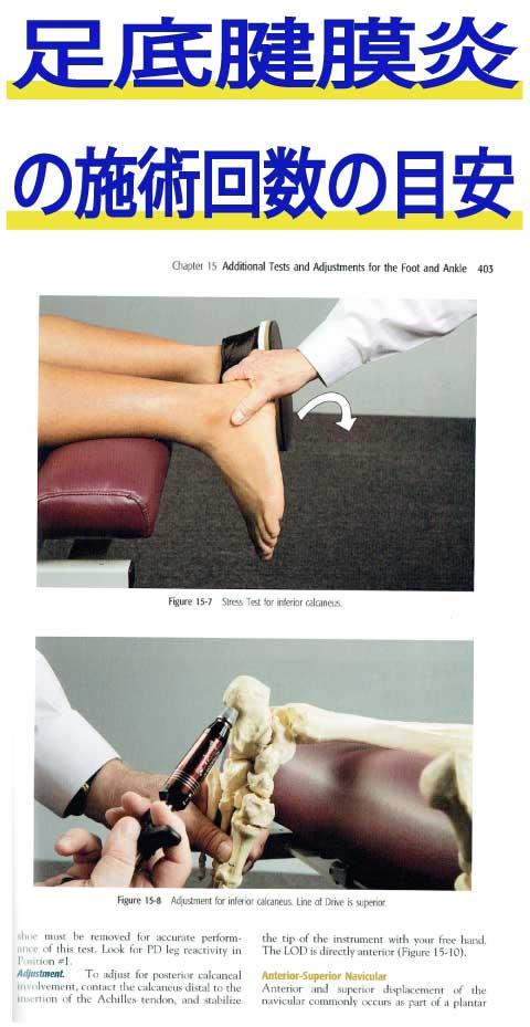 足底腱膜炎の施術回数の目安