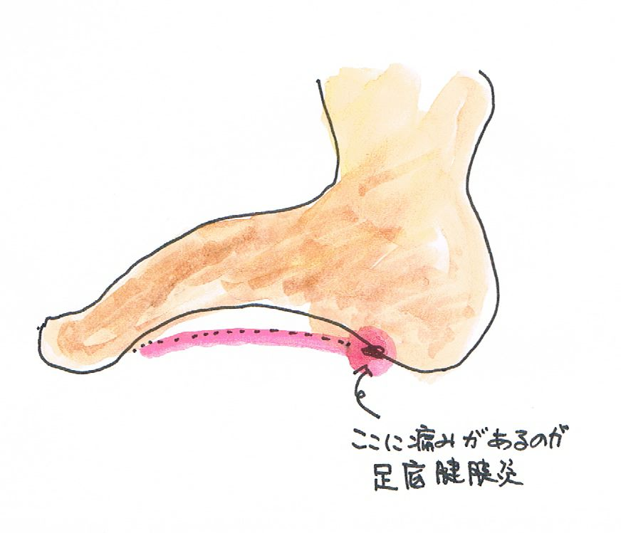 足底腱膜炎|痛みの部位|原因