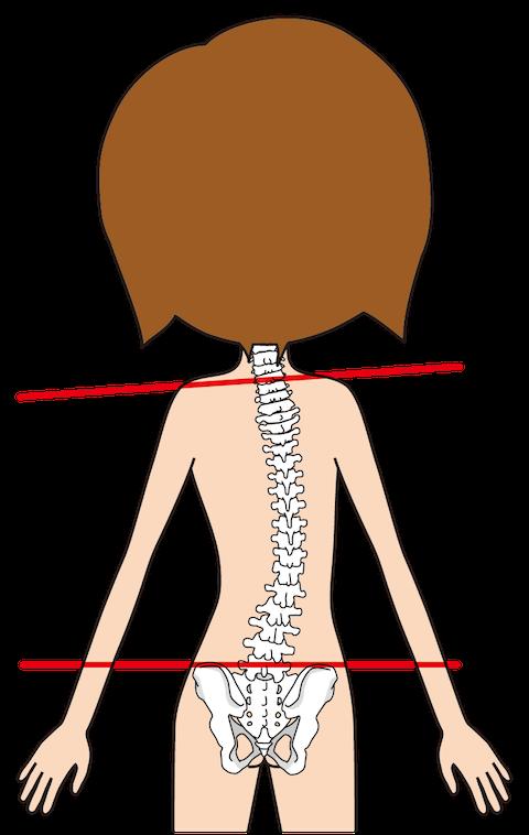 脊柱側弯症