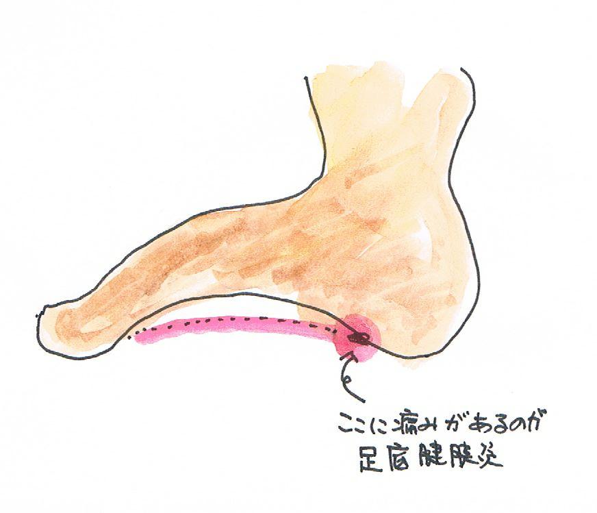 足底腱膜炎 痛みの部位 原因