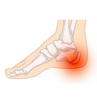 足底腱膜炎足底筋膜炎