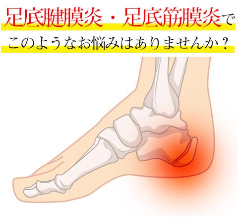 足底腱膜炎足底筋膜炎でこのようなお悩みはありませんか?