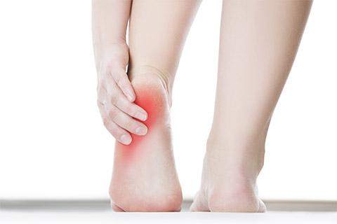 足底腱膜炎,足底筋膜炎